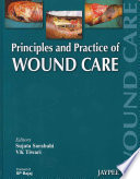 Principles And Practice Of Wound Care