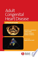 Adult Congenital Heart Disease book