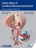 Color Atlas of Cerebral Revascularization