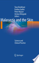 Malassezia and the Skin