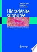 Hidrad  nite suppur  e