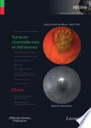 Tumeurs choroïdiennes et rétiniennes / Divers (volume 8 - coffret rétine)