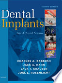 Dental Implants   E Book