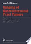 Imaging of Gastrointestinal Tract Tumors