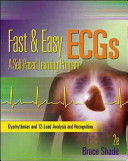 Fast and Easy ECGs  A Self Paced Learning Program
