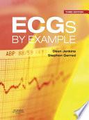 ECGs by Example E Book