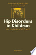 Hip Disorders In Children