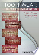 Toothwear : clinically focussed account of the diagnosis,...