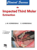 Clinical Success in Impacted Third Molar Extraction