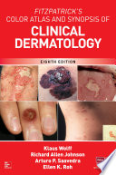 Fitzpatrick s Color Atlas and Synopsis of Clinical Dermatology  Eighth Edition