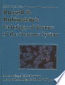 Russell & Rubinstein's Pathology of Tumors of the Nervous System 7Ed