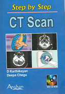 Step by Step CT Scan