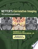 Netter   s Correlative Imaging  Neuroanatomy