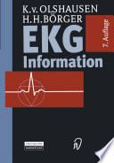 EKG Information