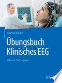 Übungsbuch Klinisches EEG