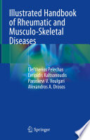 Illustrated Handbook Of Rheumatic And Musculo Skeletal Diseases