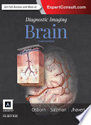 Diagnostic Imaging: Brain E-Book