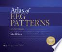Atlas Of Eeg Patterns book