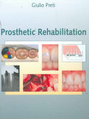 Prosthetic Rehabilitation