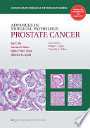 Advances In Surgical Pathology Prostate Cancer