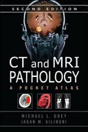 CT   MRI Pathology  A Pocket Atlas  Second Edition