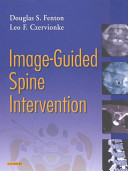 Image guided Spine Intervention