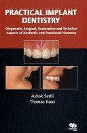 Practical Implant Dentistry