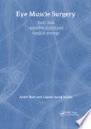 Eye Muscle Surgery  Basic Data