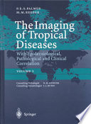 The imaging of tropical diseases