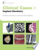 Clinical Cases In Implant Dentistry : accompanied by academic commentary, that question...