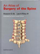 An Atlas of Surgery of the Spine