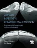 Adhäsiv befestigte Keramikrestaurationen: biomimetische Sanierungen im Frontzahnbereich