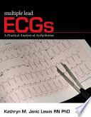 Multiple Lead ECGs  A Practical Analysis of Arrhythmias