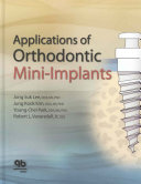 Applications Of Orthodontic Mini Implants