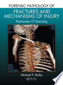 Forensic Pathology Of Fractures And Mechanisms Of Injury : to determine cause of death, and...