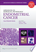 Advances In Surgical Pathology Endometrial Carcinoma