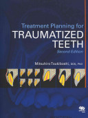 Treatment Planning for Traumatized Teeth