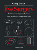 download ebook eye surgery pdf epub