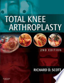 Ebook Total Knee Arthroplasty E-Book Epub Richard D. Scott Apps Read Mobile