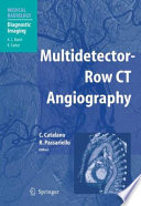 Multidetector Row Ct Angiography