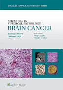 Advances In Surgical Pathology Brain Cancer