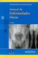 Book Manual De Enfermedades Oseas / Bone Diseases Manual
