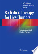 Radiation Therapy For Liver Tumors