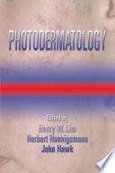Photodermatology book