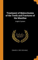 Treatment Of Malocclusion Of The Teeth And Fractures Of The Maxillae