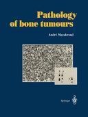 Pathology of bone tumours