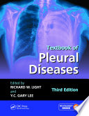 Textbook Of Pleural Diseases Third Edition book
