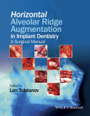 Horizontal Alveolar Ridge Augmentation in Implant Dentistry