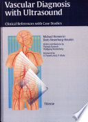 Vascular Diagnosis With Ultrasound