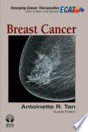Breast Cancer  ECT V1 I 3